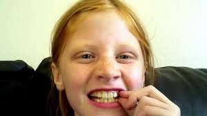 10 year old what teeth should a 10 year old lose youtube