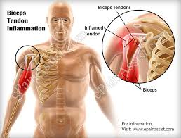 Anatomy Of Shoulder Muscles And Tendons Biceps Tendon Inflammation Causes Symptoms Treatment