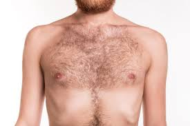 Men S   nipple discharge causes and treatments