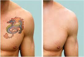 bogo tanning u2013 tattoo removal
