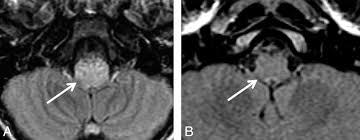 Brainstem Mass Isolated Brain Stem Lesion In Children Is It Acute Disseminated