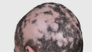 reuxolitinib could prevent hair loss in alopecia patients cbs