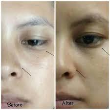 Serum Wajah Ponds Age Miracle review ponds age miracle wrinkle corrector untuk wajah lebih muda