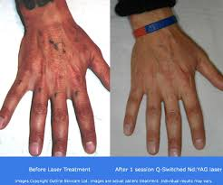 traditional tattoo removal methods tattoo removal before and