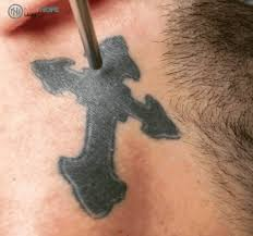 tattoo removal album on imgur
