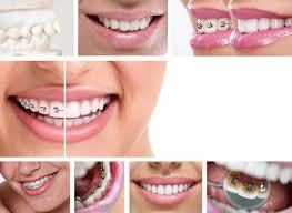 vire teeth how much do braces cost and are they worth the investment