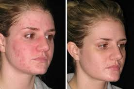 blue and red light therapy for acne red acne therapy light therapy for skin related treatment