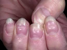 what does the half moon shape on your nails boldsky com