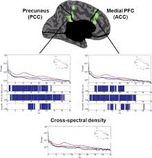 connectivity changes underlying spectral eeg changes during