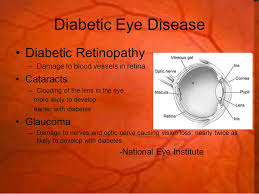 Diabetic Blindness Diabetes And The Eyes Kenyon Anderson O D Blindness Risk