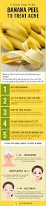 Face Mapping Acne Best 25 How To Treat Acne Ideas On Pinterest Treating Acne
