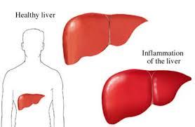 symptoms of hbv light colored stool health info hepatitis b lahey clinic