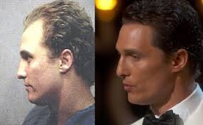 tyga hair transplant matthew mcconaughey before and after hair transplant 2 hair