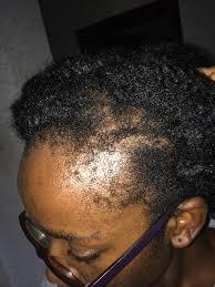 weak hair edges weak edges the kink and i