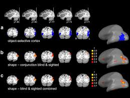 Define Cortical Blindness Nonvisual And Visual Object Shape Representations In