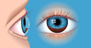 Can Cataracts Lead To Blindness Hyphema