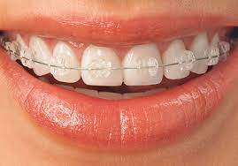 nickel free braces types of braces invisalign incognito