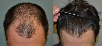 dhi hair transplant reviews dhi ireland hair loss clinic in sandyford whatclinic com