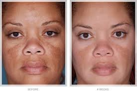 Omi Young Obagi | see how obagi nuderm can transform your skin to look younger and