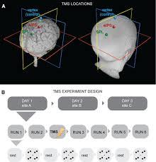 parietal cortex mediates conscious perception of illusory gestalt