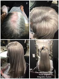 hair style for trichotillomania 25 best hair extensions images on pinterest hair extensions