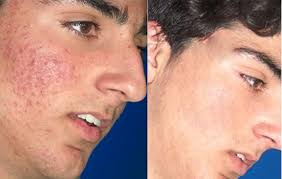 blue light for acne side effects services treatments bay pointe dermatology bay pointe dermatology