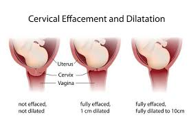 dilation of the cervix what you need to bellybelly