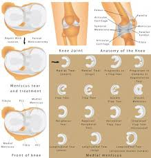 Anatomy Of Knee Injuries Meniscus Tear The Orthopedic U0026 Sports Medicine Institute In Fort