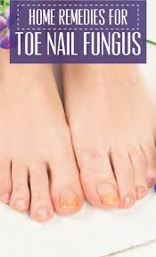 home remedies for toe nail fungus cute parents