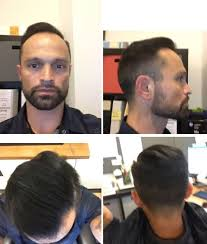 hair transplants in tj reviews patient stories freddy s hair transplant qunomedical