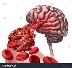 3d Head Anatomy Brain Blood Clot Medical Concept 3d Stock Illustration 401810320