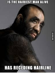 Receding Hairline Meme - is the hairiest man alive has receding hairline hairline meme on