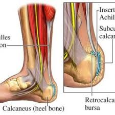 Foot Tendons Anatomy Tendonitis Risky Complications Causes Treatment And Prevention