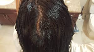 hair parting how do i get rid of this unwanted hair parting that suddenly