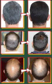 membuat minyak kemiri untuk rambut botak 5 cara menumbuhkan rambut botak secara alami tipskesehatan co