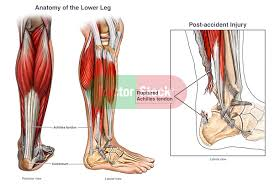 Anatomy Of The Calcaneus Rupture Of The Achilles Tendon Doctor Stock