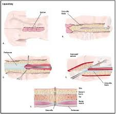 What Is Dead Tissue Called Laparotomy Exploratory Procedure Recovery Blood Tube Pain