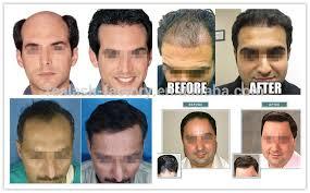 hair growth stimulants for women oil ginseng essential oil sunburst hair nourishing liquid herbal