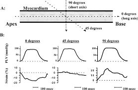 myocardial strain by doppler echocardiography circulation