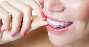 goody bands for teeth how to make braces out of dental floss
