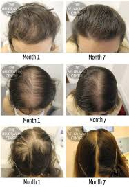 rogaine for women success stories women s hair loss treatment success stories