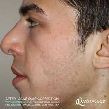 light therapy for acne scars bbl laser treatment milwaukee madison area quintessa