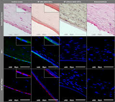 silk fibroin films for corneal endothelial regeneration