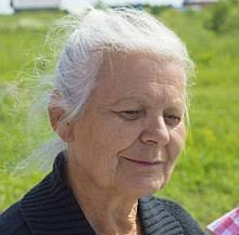 hair loss in 60 year old woman old age wikipedia