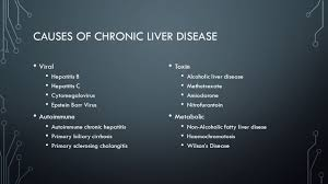 portal hypertension u0026 chronic liver disease sean chen st george