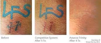 astanza trinity best nd yag ruby tattoo removal laser