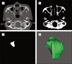 factors for maxillary sinus volume and craniofacial anatomical