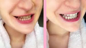 pro light dental whitening system reviews crest white strips honest review youtube