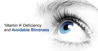 Night Blindness Deficiency Vitamin A U0027 Deficiency And Avoidable Blindness
