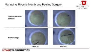 manual vs robotic retinal surgery youtube